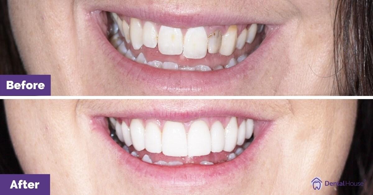 Dental-House-Group-_-Carly-Smile-Makeover-Journey