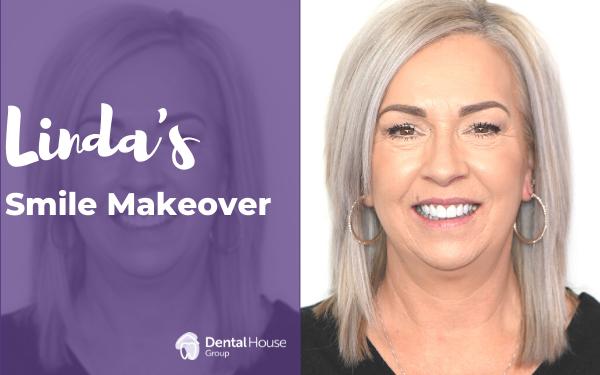 Linda's Smile Makeover in Sunbury