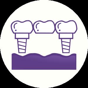 Implant Bridge Dental House Melbourne