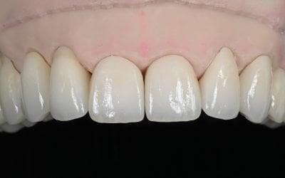 Veneers Vs. Dentures – Find Best Cosmetic Dental Replacement